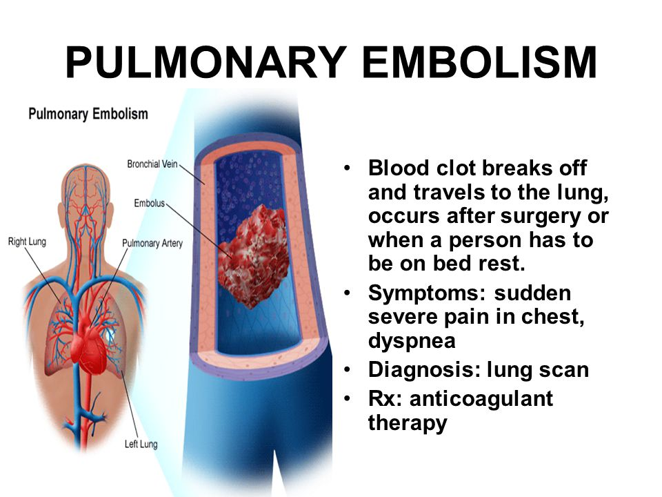 PULMONARY EMBOLISM Blood clot breaks off and travels to the lung, occurs after surgery or when a person has to be on bed rest. Symptoms: sudden severe