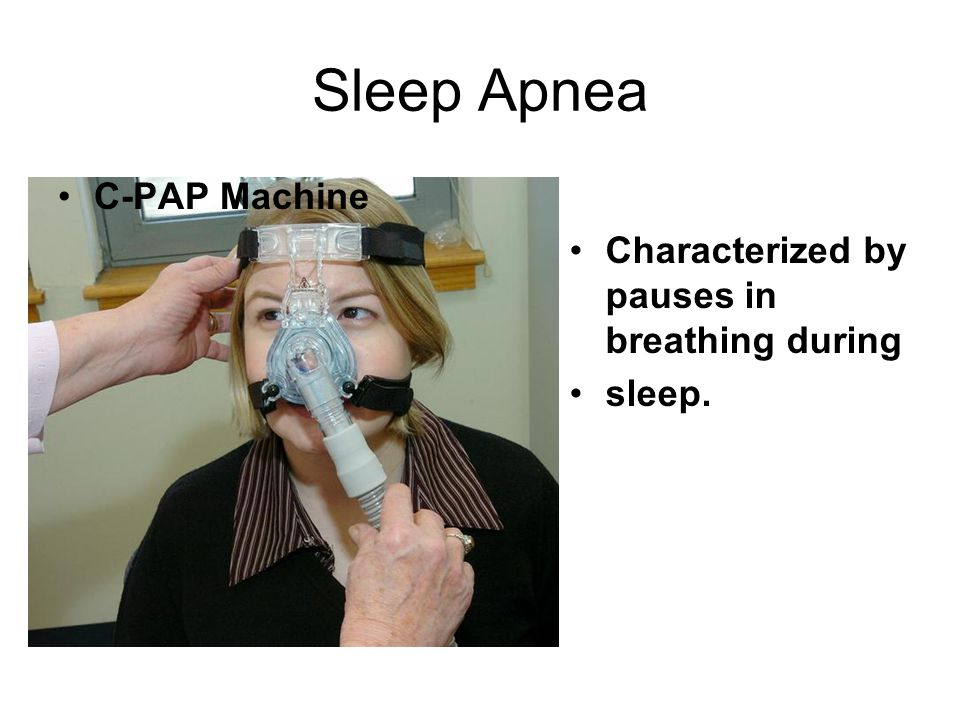 Sleep Apnea Characterized by pauses in breathing during sleep. C-PAP Machine