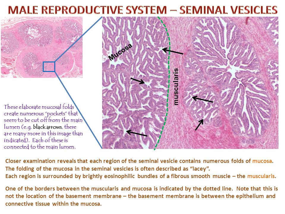 Self-check: Identify the structure indicated at X. (advance slide for answers) X