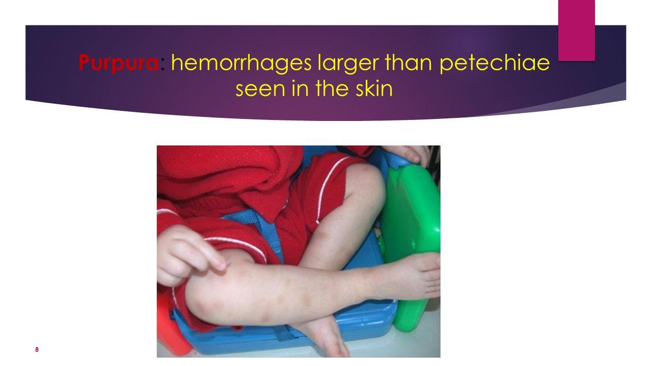 Purpura : hemorrhages larger than petechiae seen in the skin 8