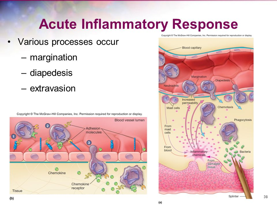 Acute Inflammatory Response Various processes occur –margination –diapedesis –extravasion 38