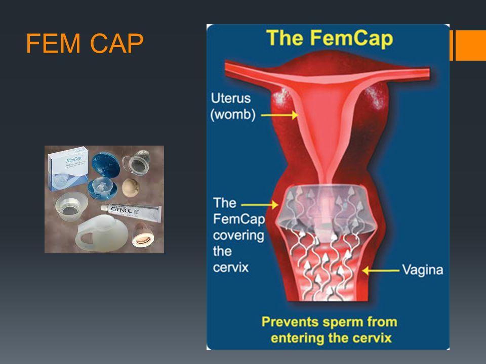 FEM CAP