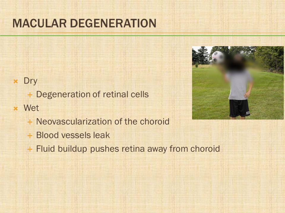 MACULAR DEGENERATION  Dry  Degeneration of retinal cells  Wet  Neovascularization of the choroid  Blood vessels leak  Fluid buildup pushes retin