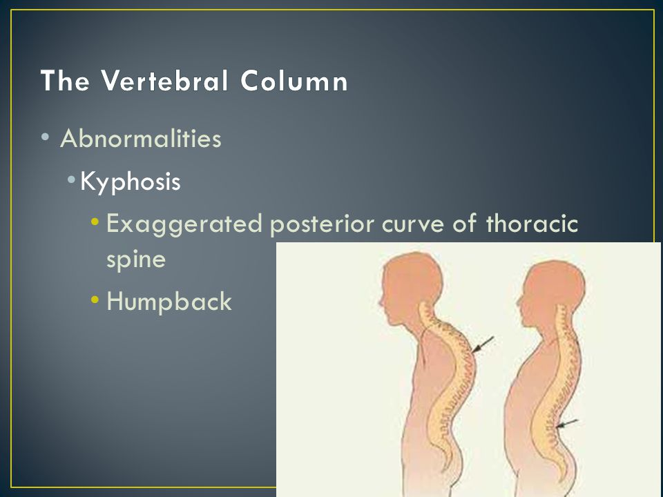 Abnormalities Kyphosis Exaggerated posterior curve of thoracic spine Humpback