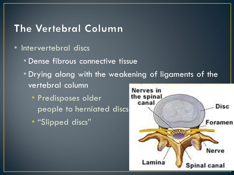 Intervertebral discs Dense fibrous connective tissue Drying along with the weakening of ligaments of the vertebral column Predisposes older people to herniated discs Slipped discs