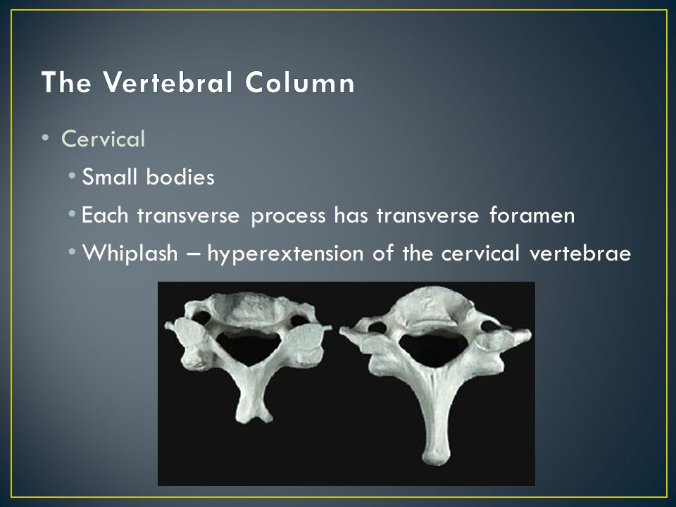 Cervical Small bodies Each transverse process has transverse foramen Whiplash – hyperextension of the cervical vertebrae