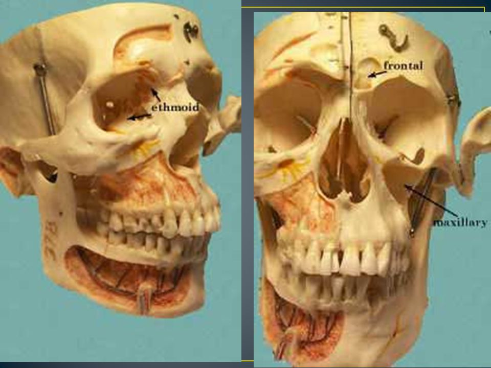 Formed by intramembranous and endochondral ossification Intramembranous (dermal) ossification The skull roof Sides and roof of the neurocranium Endochondral ossification Temporal bones Occipital Sphenoid Ethmoid