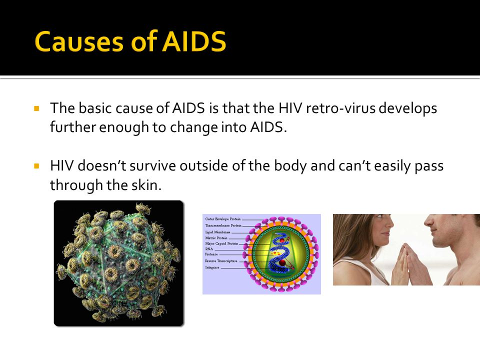  The basic cause of AIDS is that the HIV retro-virus develops further enough to change into AIDS.