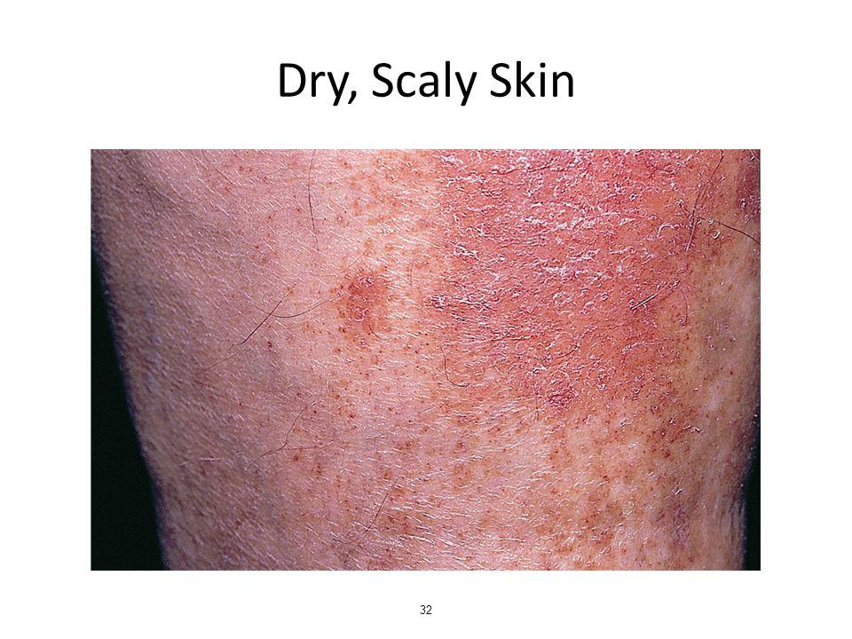 Dry, Scaly Skin 32