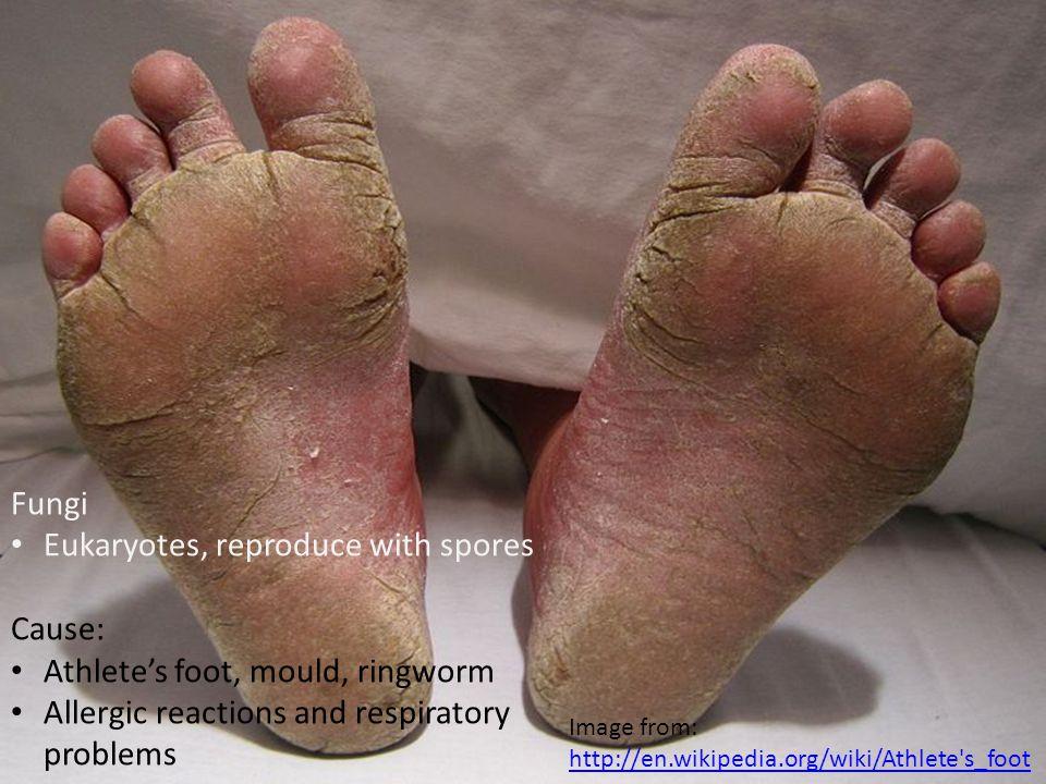 Protozoa Simple parasites Cause: Malaria Leishmaniasis Toxoplasmosis Leishmaniasis image from: http://en.wikipedia.org/wiki/Leishmaniasis