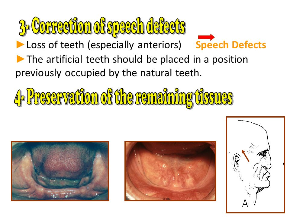 ► Loss of teeth (especially anteriors) Speech Defects ► The artificial teeth should be placed in a position previously occupied by the natural teeth.