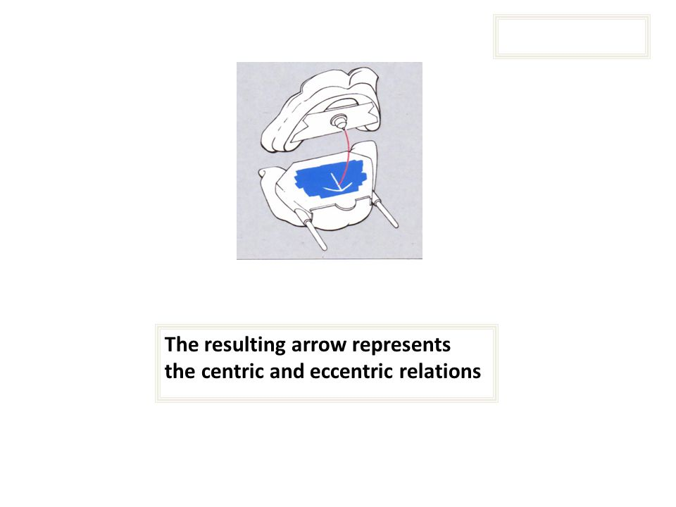 The resulting arrow represents the centric and eccentric relations