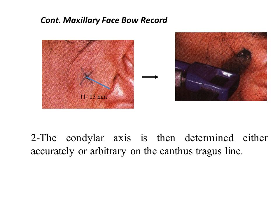 Cont. Maxillary Face Bow Record 2-The condylar axis is then determined either accurately or arbitrary on the canthus tragus line. 11- 13 mm