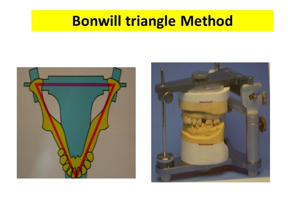 Bonwill triangle Method