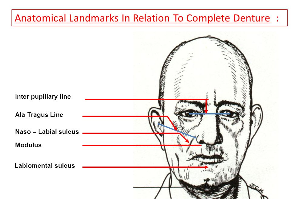 Anatomical Landmarks In Relation To Complete Denture : Inter pupillary line Ala Tragus Line Modulus Naso – Labial sulcus Labiomental sulcus Extra Oral Landmarks