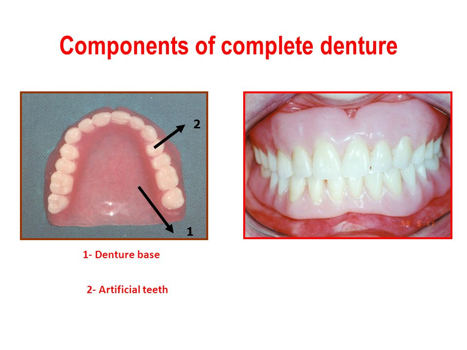 2 1 1- Denture base 2- Artificial teeth Components of complete denture