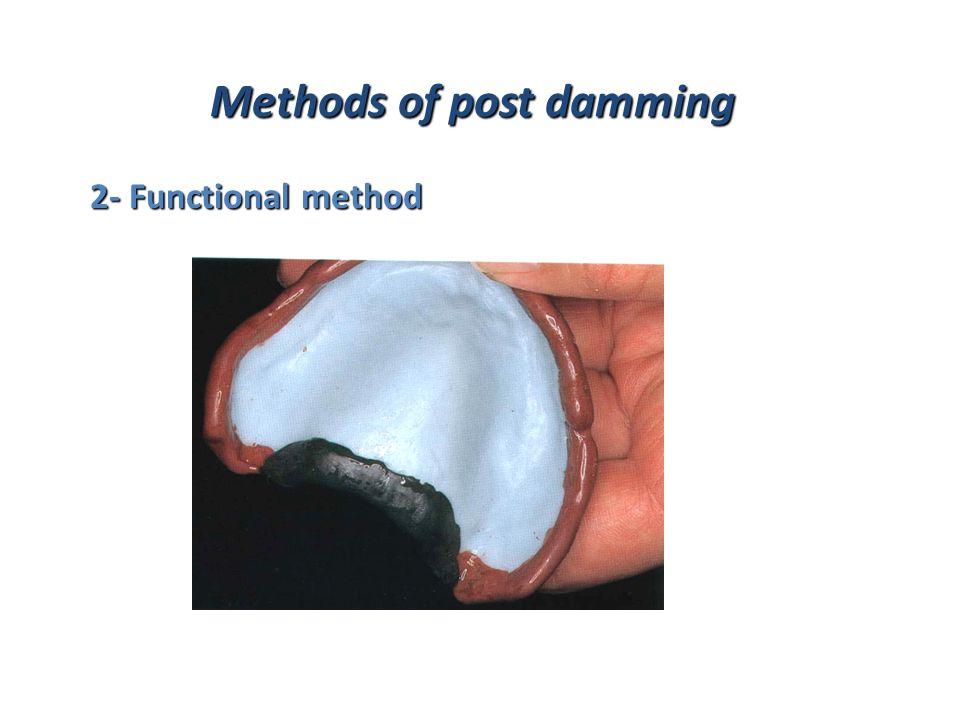 Methods of post damming 2- Functional method 2- Functional method