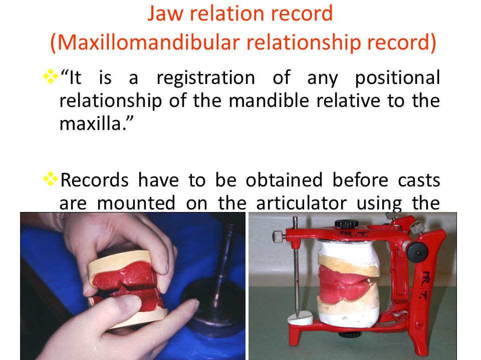 Jaw relation record (Maxillomandibular relationship record)  It is a registration of any positional relationship of the mandible relative to the maxilla.  Records have to be obtained before casts are mounted on the articulator using the ??????.
