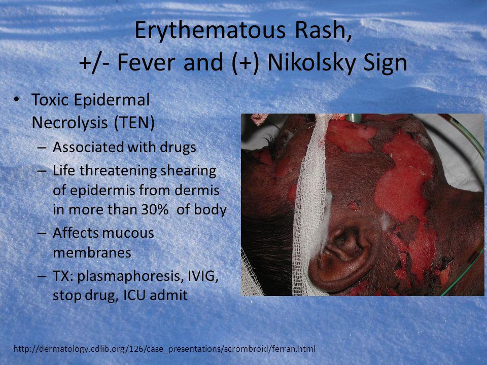 Erythematous Rash, +/- Fever and (+) Nikolsky Sign Toxic Epidermal Necrolysis (TEN) – Associated with drugs – Life threatening shearing of epidermis f