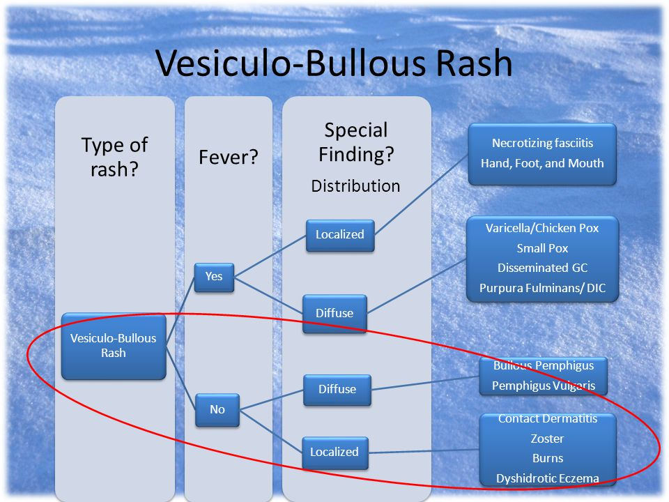 Vesiculo-Bullous Rash Special Finding? Distribution Fever? Type of rash? Vesiculo-Bullous Rash Yes Localized Necrotizing fasciitis Hand, Foot, and Mou