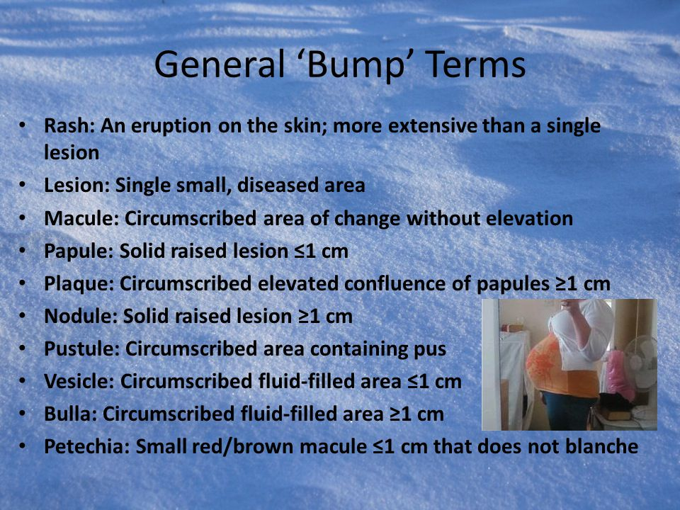 General 'Bump' Terms Rash: An eruption on the skin; more extensive than a single lesion Lesion: Single small, diseased area Macule: Circumscribed area