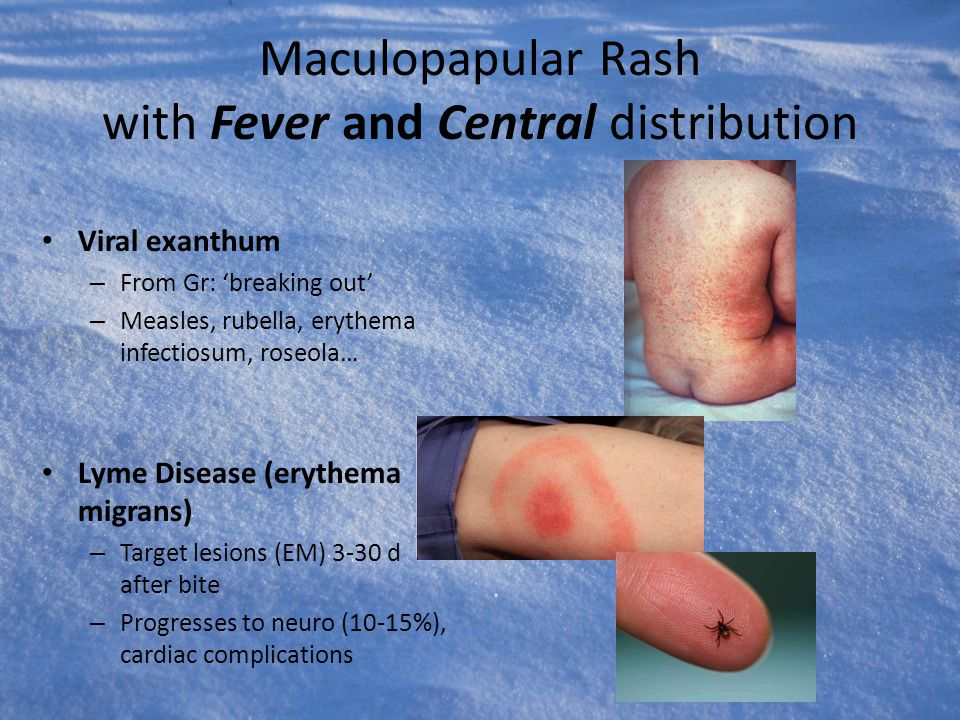 Maculopapular Rash with Fever and Central distribution Viral exanthum – From Gr: 'breaking out' – Measles, rubella, erythema infectiosum, roseola… Lym