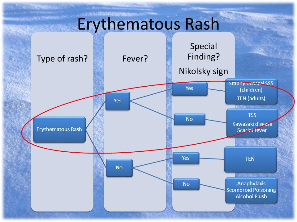 Erythematous Rash Special Finding? Nikolsky sign Fever?Type of rash? Erythematous Rash Yes Staphylococcal SSS (children) TEN (adults) No TSS Kawasaki