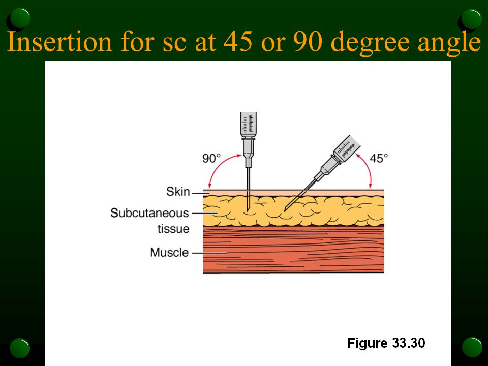 Insertion for sc at 45 or 90 degree angle