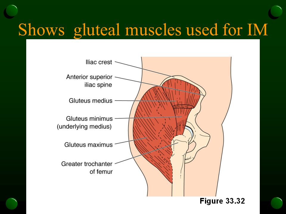 Shows gluteal muscles used for IM