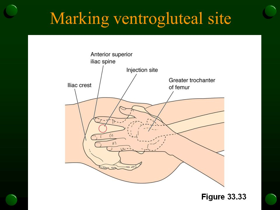 Marking ventrogluteal site