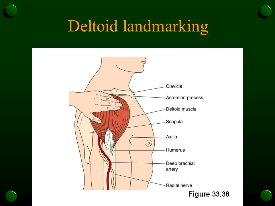 Deltoid landmarking