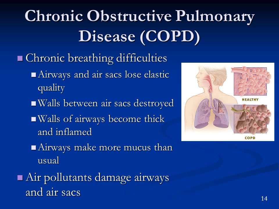14 Chronic Obstructive Pulmonary Disease (COPD) Chronic breathing difficulties Chronic breathing difficulties Airways and air sacs lose elastic quality Airways and air sacs lose elastic quality Walls between air sacs destroyed Walls between air sacs destroyed Walls of airways become thick and inflamed Walls of airways become thick and inflamed Airways make more mucus than usual Airways make more mucus than usual Air pollutants damage airways and air sacs Air pollutants damage airways and air sacs