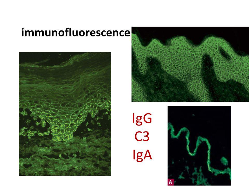 immunofluorescence IgG C3 IgA