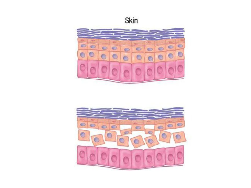 INVESTIGATION Skin Biopsy will show subepidermal splits Direct IF reveals IgA along the BM of the epidermis in a linear pattern