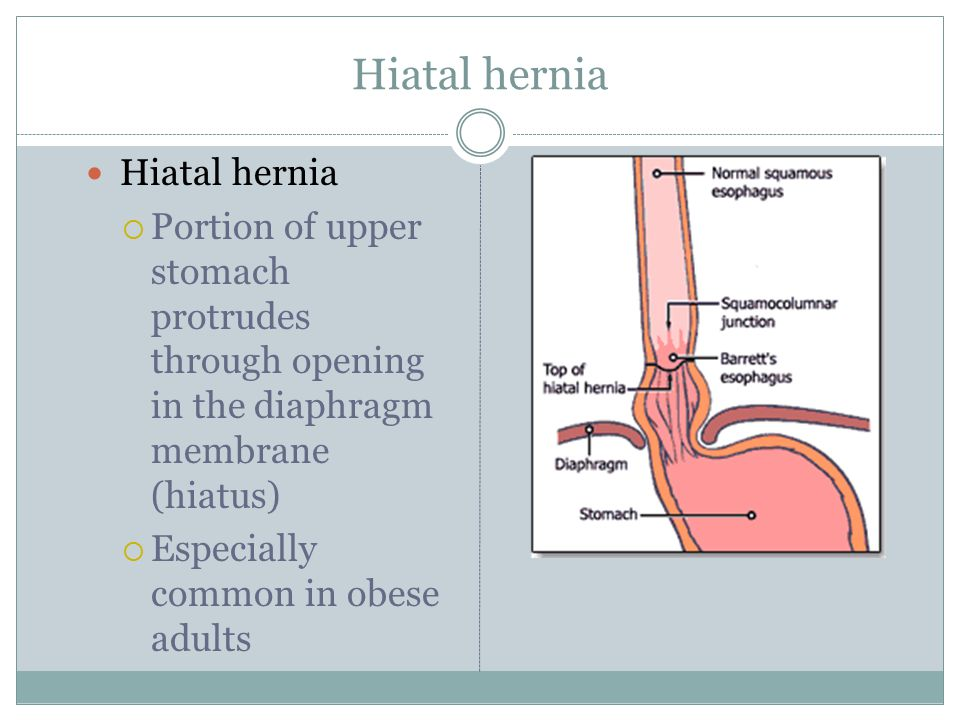 Hiatal hernia  Portion of upper stomach protrudes through opening in the diaphragm membrane (hiatus)  Especially common in obese adults