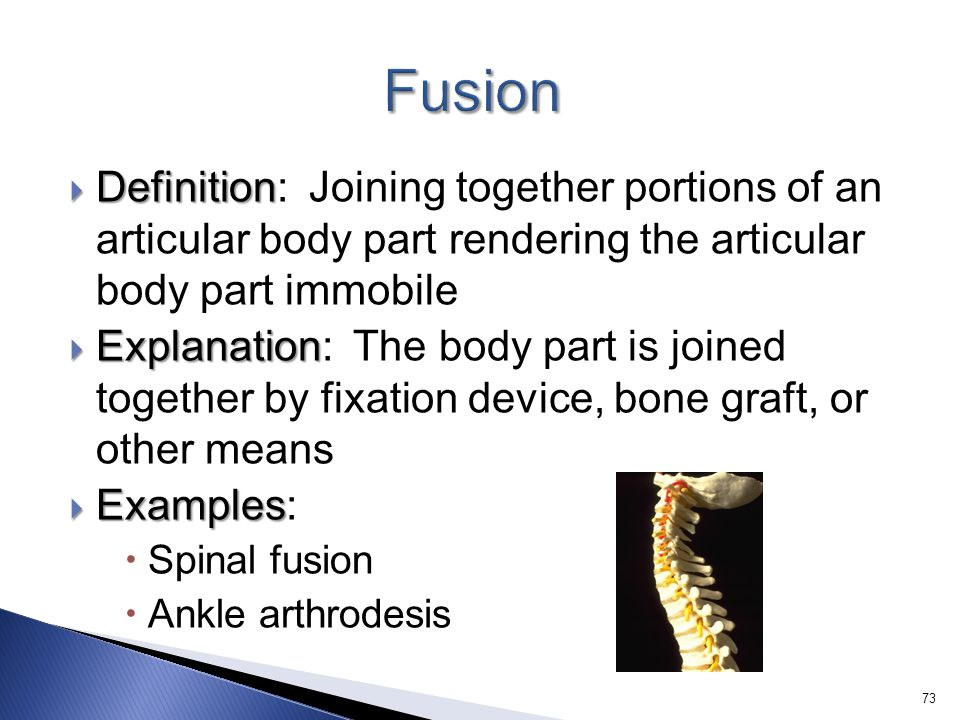  Definition  Definition: Joining together portions of an articular body part rendering the articular body part immobile  Explanation  Explanation: