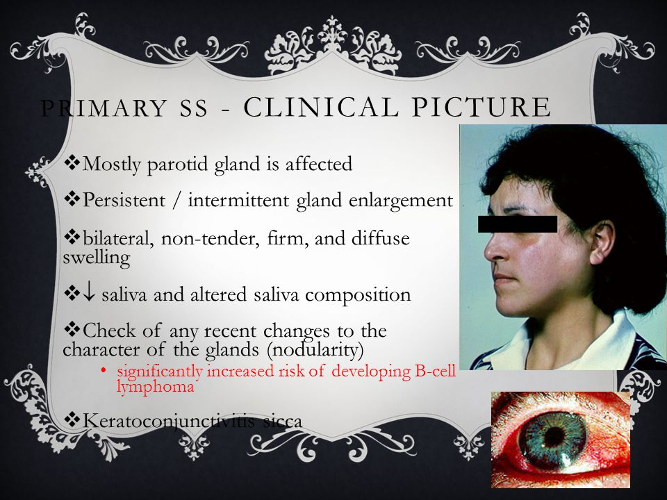 SECONDARY SS - CLINICAL PICTURE  Dryness of the skin & pruritis  Dry and persistent cough  >50% have arthralgia with or without arthritis  Dysphagia, nausea, dyspepsia, and epigastric pain  Peripheral & cranial neuropathy