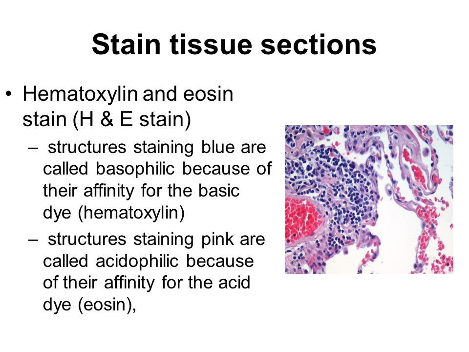 Stain tissue sections Hematoxylin and eosin stain (H & E stain) – structures staining blue are called basophilic because of their affinity for the basic dye (hematoxylin) – structures staining pink are called acidophilic because of their affinity for the acid dye (eosin),