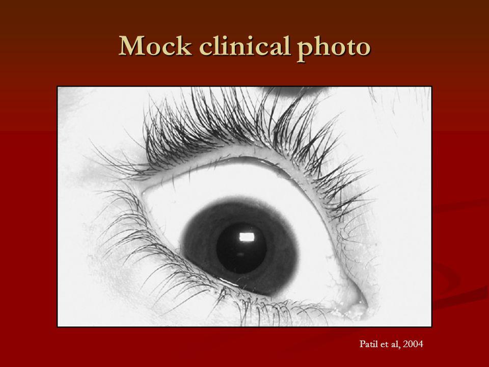 Mock clinical photo Patil et al, 2004