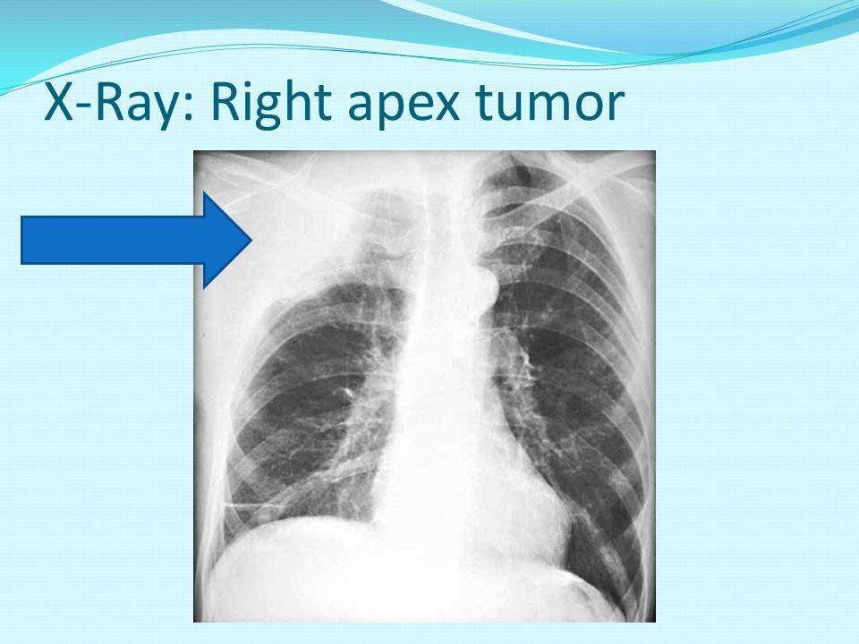 X-Ray: Right apex tumor