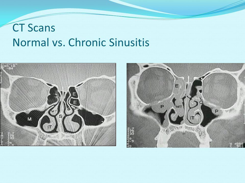 CT Scans Normal vs. Chronic Sinusitis