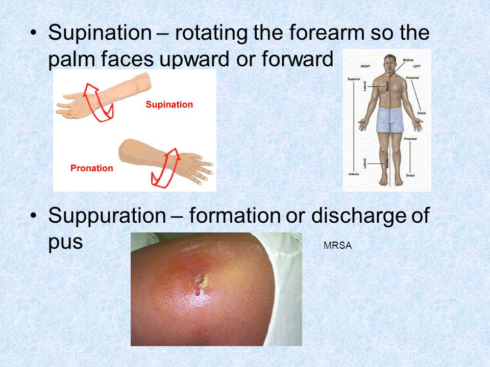 Supination – rotating the forearm so the palm faces upward or forward Suppuration – formation or discharge of pus MRSA