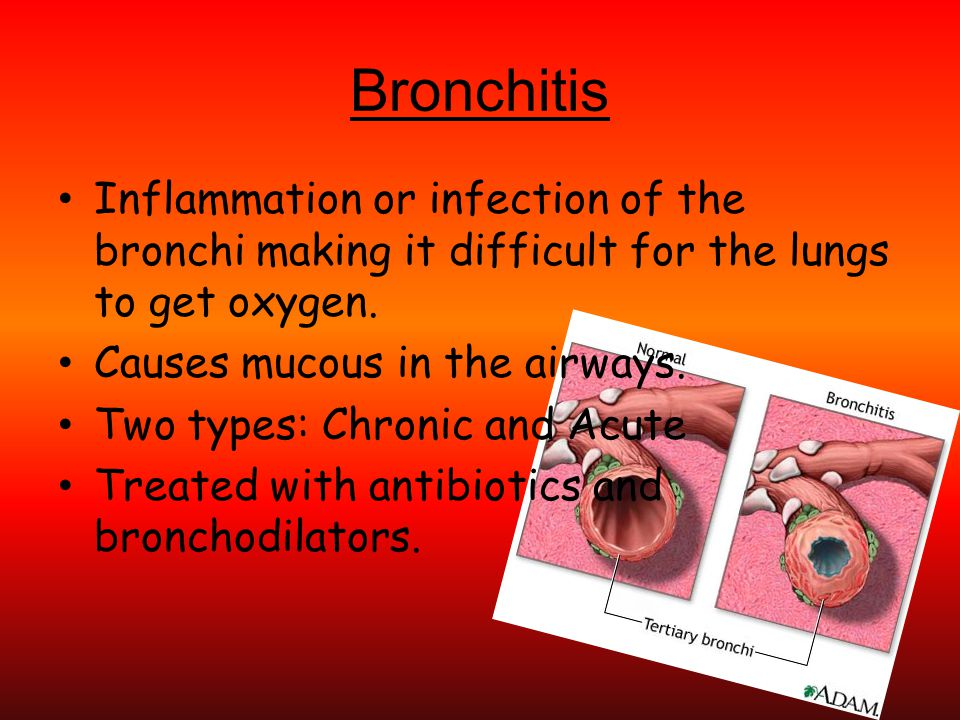 Bronchitis Inflammation or infection of the bronchi making it difficult for the lungs to get oxygen.