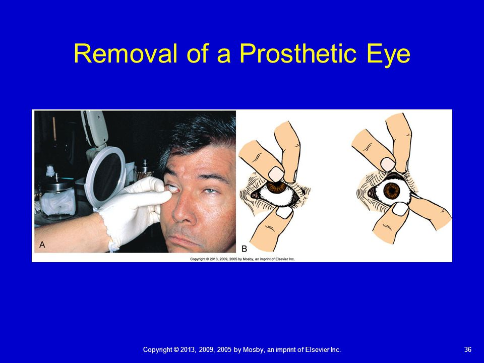 36Copyright © 2013, 2009, 2005 by Mosby, an imprint of Elsevier Inc. Removal of a Prosthetic Eye
