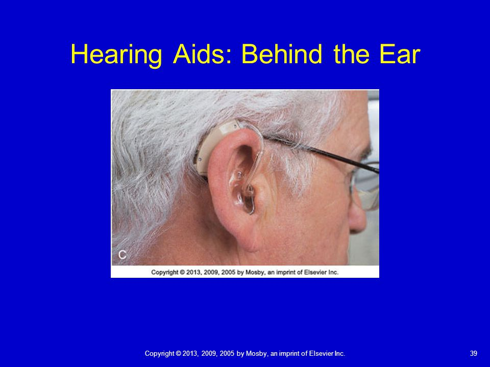 39Copyright © 2013, 2009, 2005 by Mosby, an imprint of Elsevier Inc. Hearing Aids: Behind the Ear