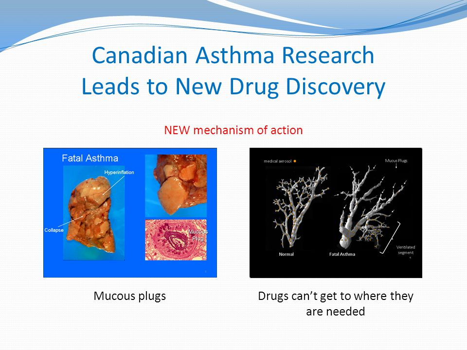 Canadian Asthma Research Leads to New Drug Discovery NEW mechanism of action Mucous plugsDrugs can't get to where they are needed