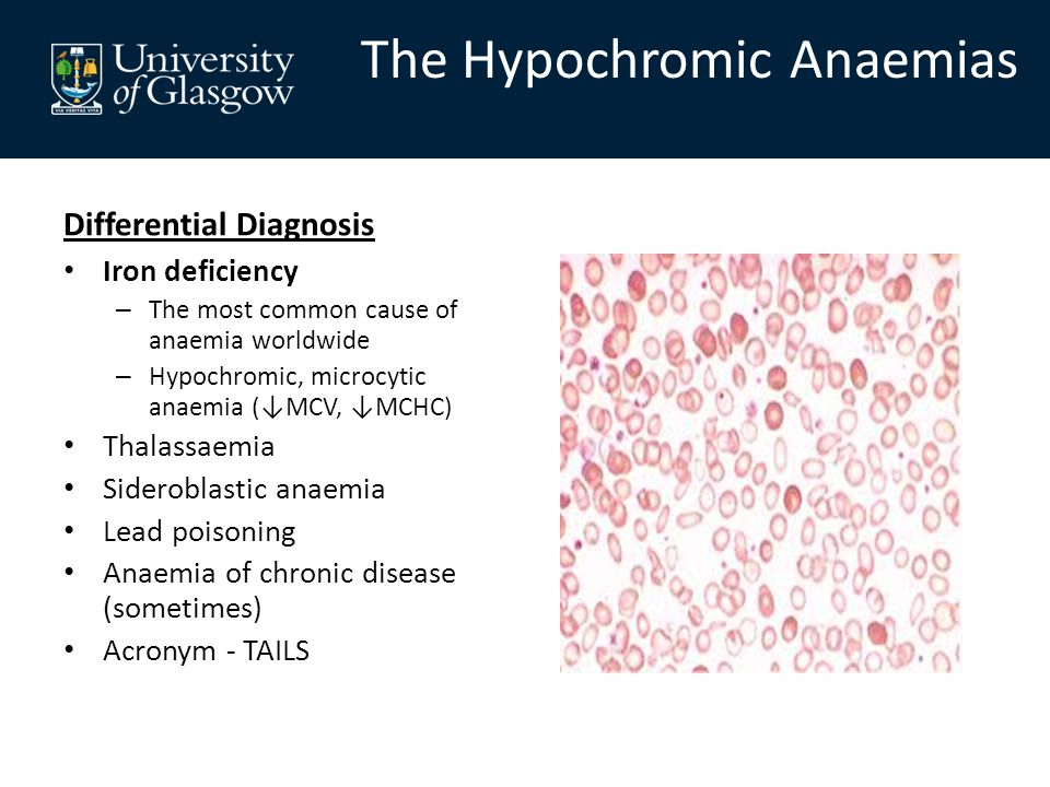 Differential Diagnosis Iron deficiency – The most common cause of anaemia worldwide – Hypochromic, microcytic anaemia (↓MCV, ↓MCHC) Thalassaemia Sideroblastic anaemia Lead poisoning Anaemia of chronic disease (sometimes) Acronym - TAILS The Hypochromic Anaemias
