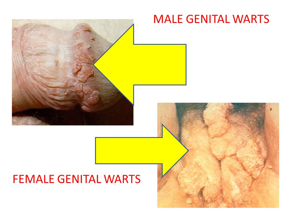 TREATMENT Visible genital warts can be removed by topical medications the patient applies, or by treatments performed by a health care provider.