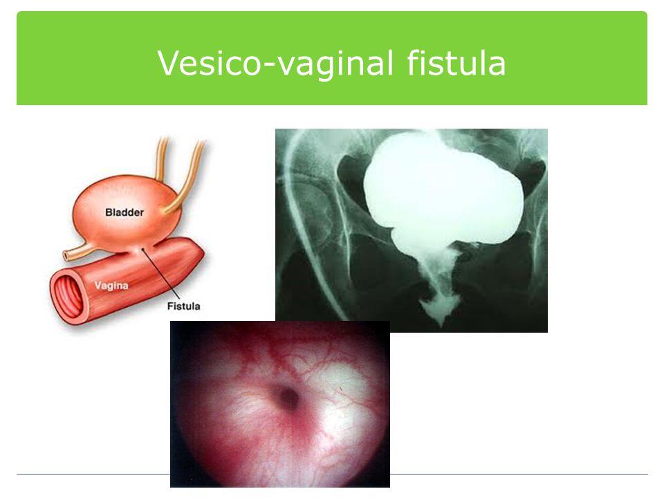 Vesico-vaginal fistula