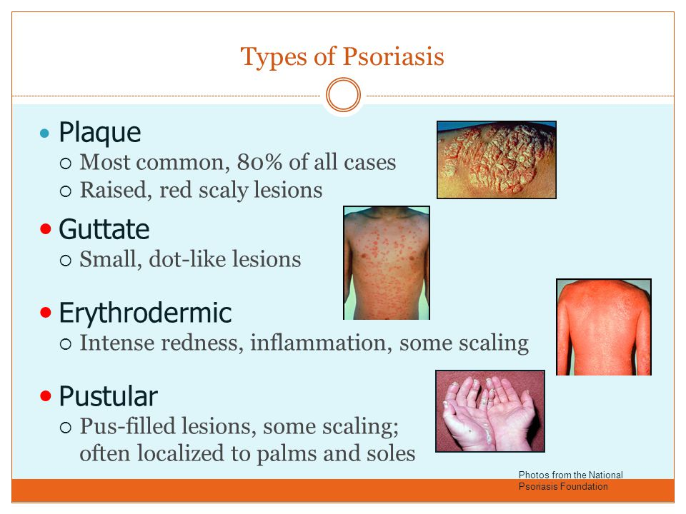 Types of Psoriasis Plaque  Most common, 80% of all cases  Raised, red scaly lesions Guttate  Small, dot-like lesions Erythrodermic  Intense rednes